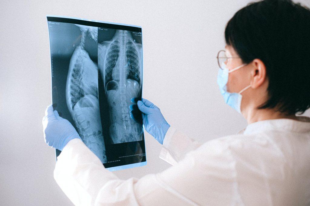Radiografías de pulmones